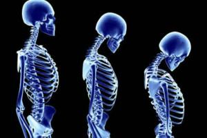 Apa Kabar Tulang Kita Hari Ini?